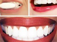Beautiful teeth/smile