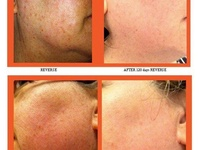 """What is the one thing you would change about your skin if given the opportunity? Scroll through these photos and """"like"""" the before + after pic that best represents the change you're looking for. Then, shoot me a quick message and I'll show you how to achieve those results RISK FREE! #RodanFields #BeforeAfter #Results #RiskFREE"""