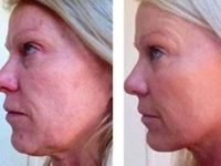 Your Nodal At Home Facelift Gained From Face Flexing Exercises / A Facial Toning Regime That Removes Lines And Folds And Firms Slack Face Skin