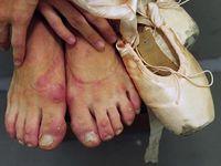 100+ Best Balerina lábak - Ballerina feet :-( images | lábak, tánc, balett