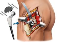 31 Best Images About Hip Replacement On Pinterest