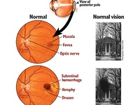Vitamins And Macular Degeneration Macular Degeneration Eye