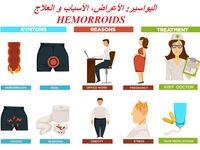 البواسير كيف تتخلص من البواسير الداخلية والخارجة بدون جراحة و بطرق طبيعية ماهي البواسير أو الدوالي Hemorrhoids Hemorrhoids Treatment Cure For Hemorrhoids