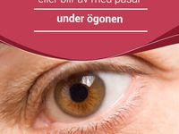 bikarbonat under ögonen