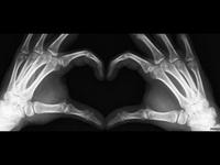 X-ray me