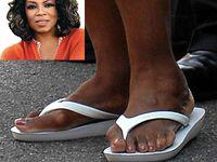 Famous feet gone bad