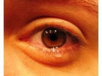 1000 images about dry eye syndrome on pinterest other for Mucus fishing syndrome