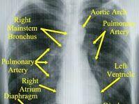respiratory  Board