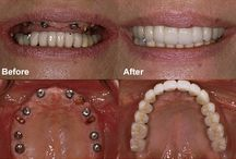 Dental Implant / At New Smiles Texas, we specialize in completing a person's smile, especially for those who are missing teeth. For many, instead of having all 32 teeth, they have 31 or fewer. Did you know that about half of Americans are missing at least one tooth? In fact, about 35 million Americans have no teeth at all. It is a problem that affects so many for various reasons.