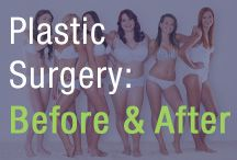 Plastic Surgery: Before & After / Dr. Weinberg shares all you need to know about planning for and recovering from your surgery. Learn more about the do's and don'ts before and after your plastic surgery procedure.