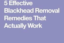 Blackhead removal tratment