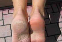 Szép lábakért