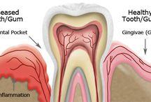 Usna šupljina