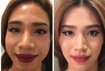 non surgical face lift, jaw line, cheeks enhancemen, laugh line