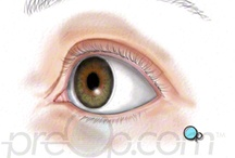 PreOp® Laser Eye LASIK  / Patient Education Company