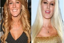 Top 15 Celebs with Plastic Surgery / Top 15 Celebs with Plastic Surgery