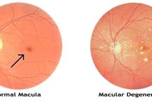 """Macular Degeneration / Macular degeneration is the leading cause of blindness in the United States and many European countries. The neovascular """"wet"""" form of the disease is responsible for most (90%) severe loss of vision. There are approximately 200,000 new cases of wet macular degeneration in the United States each year."""