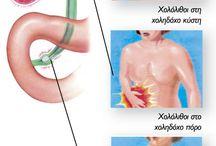 ΧΟΛΟΚΥΣΤΙΤΙΔΑ / Χολολιθίαση - Χολοκυστίτιδα