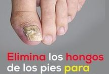 REMEDIOS PARA HONGOS PIES.