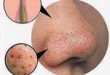 Anti blackheads