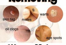 warts moles etc
