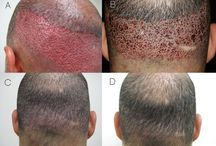 Hair Transplant Techniques / This board is created for discuss regarding hair transplant techniques and also you can get information regarding hair transplant in India and hair transplant cost in India.