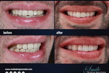 smile design | before & after / Improve your esteem in 2 hours with Smile Design Masters #SDM #smileagain  (520) 940 - 5518 www.smilesdesignmasters.com