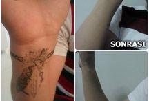 Dövme Silme / Gerçeğe yakın ve Gerçekten öteye uzman bir bakışla Profesyonel Makyajın adresi Ayşegül Aş...