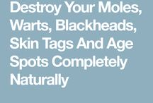 Treatment for moles