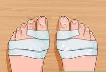 bunions feet