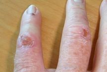 Fungal Infections / Fungal Infections are inflammatory conditions caused by a fungus. Most fungal infections are superficial and mild, though persistent and difficult to eradicate