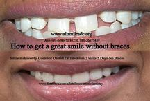 smile makeovers in India / Smile makeovers by expert cosmetic dentist in Bangalore.India. This treatment is not a surgery and your teeth can be straightened or corrected without braces/orthodontic treatment and can be completed in just 5-7 days in 2-3 visits.ALLSMILES - CENTRE FOR COSMETIC DENTISTRY AND DENTAL IMPLANTS. ONLY AT-.64, SHANKAR MUTT MAIN ROAD BASAVANAGUDI. BANGALORE-560004 NO OTHER BRANCHES..KARNATAKA. INDIA. E-MAIL- allsmilesdc@hotmail.com PH +91-80-26673439, 98450 85230.