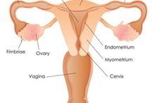Ovarian Cancer Symptoms / Ovarian cancer is any cancerous growth that may occur in different parts of the ovary. The majority of ovarian cancers arise from the epithelium (outer lining) of the ovary. According to the American Cancer Society it is the 8th most common cancer among women in the USA (excluding non-melanoma skin cancers). In the UK ovarian cancer is the fifth most common cancer among females, after breast cancer, bowel cancer, lung cancer and uterine cancer
