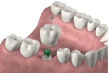 Implantología / Avances de implantología como materiales utilizados. Tipos de implantes, precios y formas