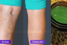 salud en piernas
