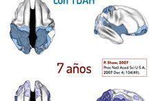 Neuropatología de los Trastornos Transitorios /permanentes
