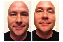 Fastar hud i ansiktet / Många människor köper idag Facial Applicators (wraps) eftersom de inser att de nu äntligen kan strama upp, tajta till och få ett fastare ansikte. Detta på endast 45 minuter! Ring oss... 018-495 11 85 eller gå till: http://healthier-online.com/fastare-hud-i-ansiktet-pa-45-minuter/ Tack!