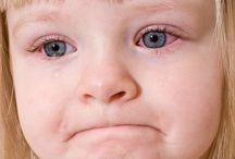 Eye infections- conjunctivitis