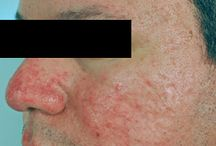 Rosacea With Bumps