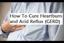 Heartburn and Acid Reflux Remedy