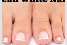 white tonenails