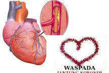 obat jantung alami / Pengobatan penyakit jantung koroner, lemah , bengkak dan masalah klep jantung dan perlukah memasang ring jantung untuk pengobatan penyakit jantung