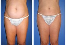 Liposuction - Abdomen / Dr. William Hall specializes in abdomen liposuction treatments. He uses a variety of techniques for surgery such as laser lipo and smart lipo. Call today to schedule your complimentary consultation to learn more about liposuction cost, liposuction pros and cons, and liposuction side effects at 480-946-7100. View the Infini Phoenix Liposuction website at Infiniskin.com to see additional liposuction before and after photos, videos, and reviews.