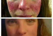 Rosacea / Rosacea is a condition characterised by episodes of flushing of the face, redness of the skin, small red (papules) or pus-filled (pustules) spots and dilated blood vessels (telangiectasia). It tends to affect the cheeks, forehead, nose and chin and symptoms often come and go throughout life. Rosacea most commonly affects fair-skinned people between the ages of 30 and 60. http://www.harleystreetemporium.com/conditions/rosacea/