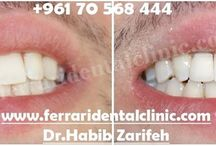 Dental implants Beirut / The number one Dental implants dentist and clinic in Lebanon by Ferrari dental clinic ISO 9001 Hollywood smile Beirut. Call us now: +96170567444 Http://www.dentalimplantslebanon.com #hollywoodsmile #veneers #lumineers #dentist #dentalclinic #Beirut #Lebanon #dentalimplants  #cosmeticdentistry #HollywoodsmileLebanon #Hollywoodsmilebeirut #veneersLebanon #VeneersBeirut #cosmeticdentistryLebanon #CosmeticdentistryBeirut #DentistLebanon #DentistBeirut #dentalimplantsLebanon #DentalimplantsBeirut