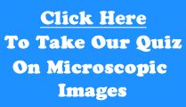 Microscopic images / Can you identify these microscopic images?