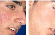 Acne Treatments / Suffering with acne ? - http://www.hbhealthofknightsbridge.co.uk/face/laser-skin-rejuvenation/acne/
