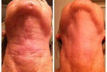 Nerium Results / by Christan Gonzales