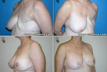 GAP Flap / The GAP flap uses the patient's buttock tissue to reconstruct a natural breast.