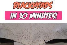 Blackhead blaster